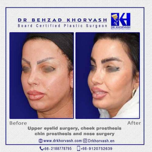blepharoplasty-cheek--chin-prosthesis-rhinoplasty