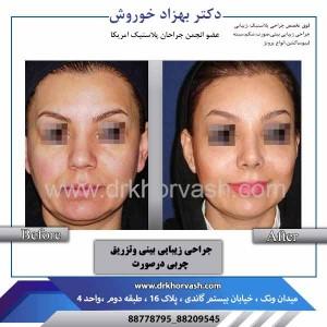 جراحی زیبایی بینی و تزریق چربی در صورت