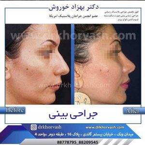 اقدامات قبل از جراحی بینی 3