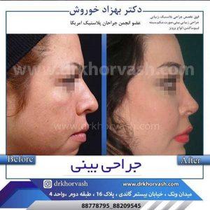 اقدامات قبل از جراحی بینی 2