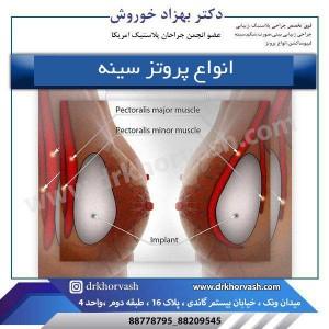 انواع پروتز سینه