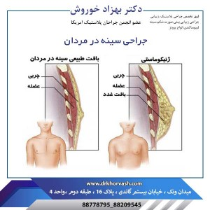 جراحی سینه در مردان