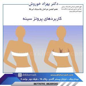 کاربرد پروتز سینه