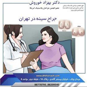 جراح سینه در تهران