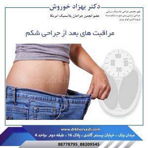 مراقبت های بعد از جراحی شکم