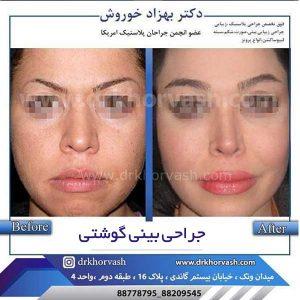 جراحی بینی گوشتی 2