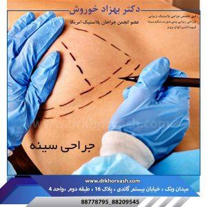 جراحی سینه 2