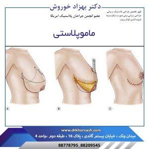 ماموپلاستی 2
