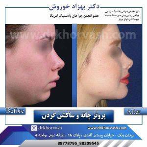 پروتز چانه و ساکشن گردن 1