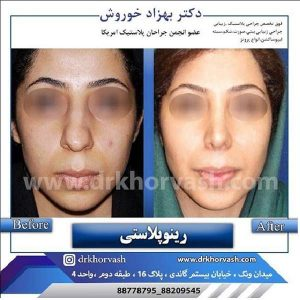 جراح بینی 2