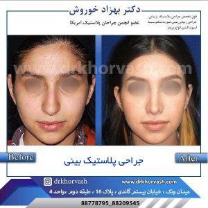 جراح پلاستیک بینی 2